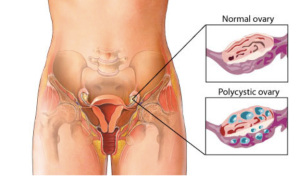 PCOS-Illustration-from-WebMD